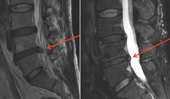 low-back-herniated-disk-before-and-after-prolotherapy-cure